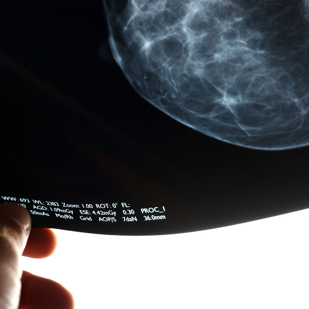 Breast Cancer X-Ray