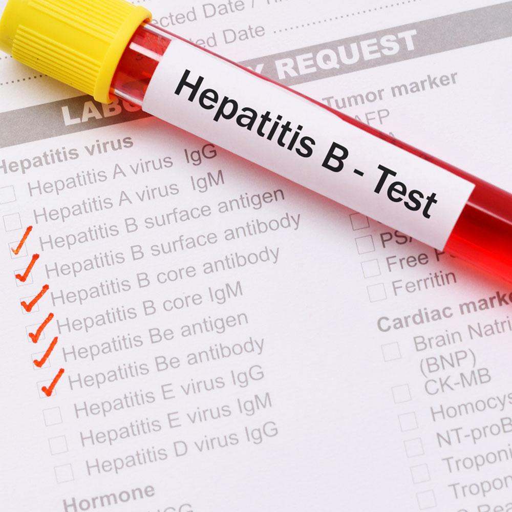 Hepatitis B Results Chart
